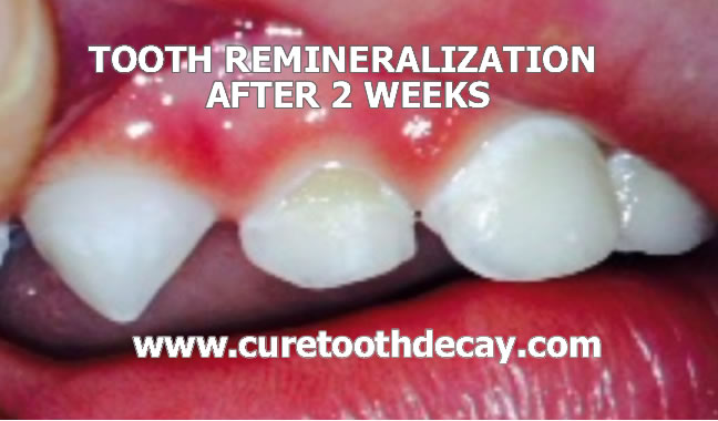 baby tooth remineralization after 2 weeks