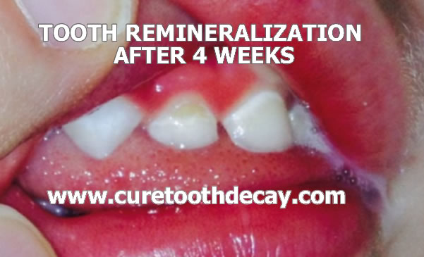 baby tooth remineralizing after 4 weeks of special food