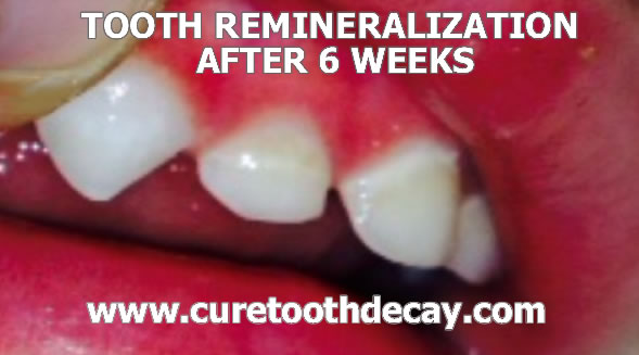baby tooth remineralization after 6 weeks