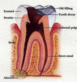 Tooth Decay Image with Pulp Damage