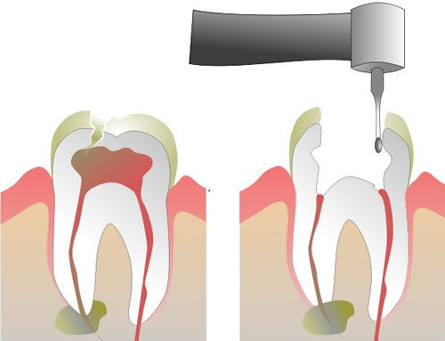 Root Canal Procedure Step 1 and 2