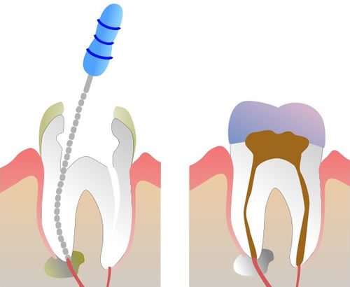 14 Mar 2012  Root canal therapy can be preformed in single or multiple visits. Before the   procedure, though, your dentist will advise you as to the number of