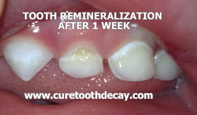 tooth remienralization week 1