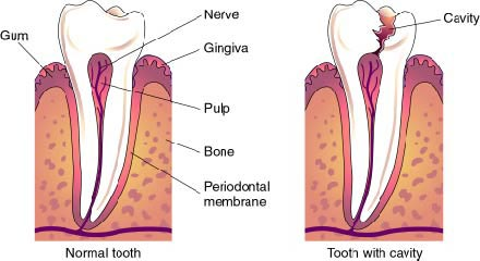 Cavity Anatomy