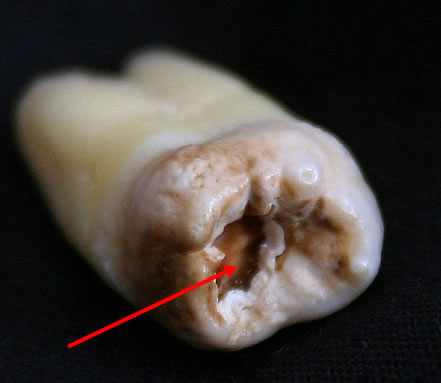 Decayed Teeth Extraction Massive tooth cavity