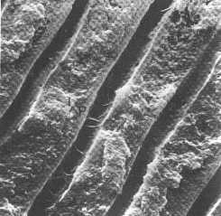 Tooth Dentine Microscopic