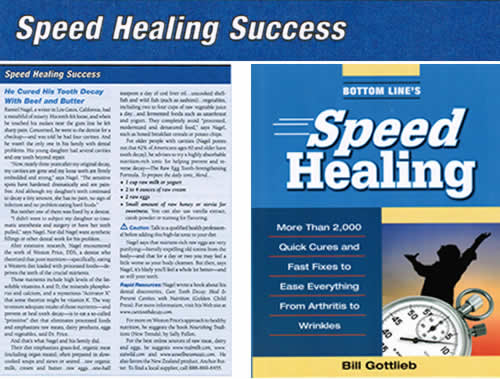 Speed Healing Success Tooth Decay