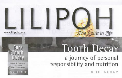 LiliPoh Tooth Decay Issue